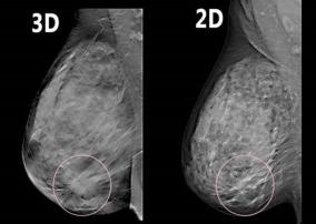 New 3d Mammography At Bchcc Butler County Health Care Center